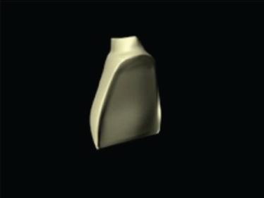 Estratificación carillas resina Forma Ultradent