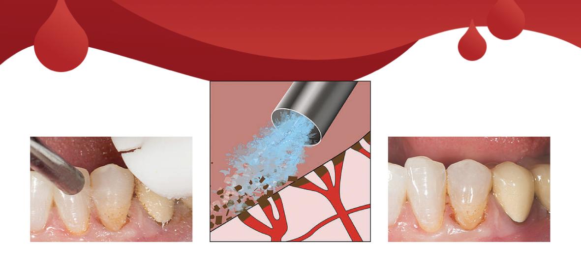 Manejo de encía sangrante en restauración - Ultradent